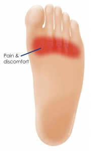 ball of foot pain Upper Colo, 2756