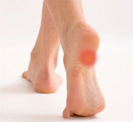 heel pain Upper Nile
