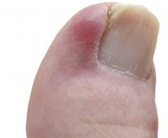ingrown toenail Ben Bullen, 2790