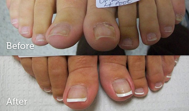 fungal nail infection faulconbridge