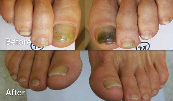 fungal nails lithgow